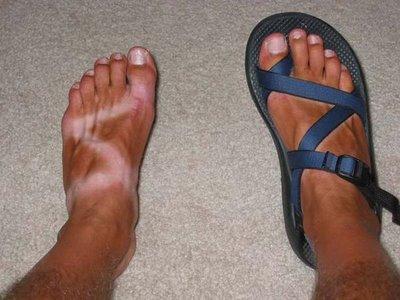bad tan lines
